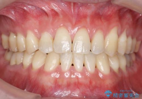 受け口、八重歯 変則的な抜歯の症例 治療後