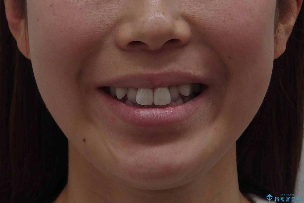 前歯を下げたい 矯正治療+つめもののやりかえの治療前(顔貌)