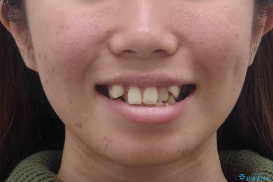 20代女性 八重歯をきれいに、前歯のがたがたの治療前(顔貌)