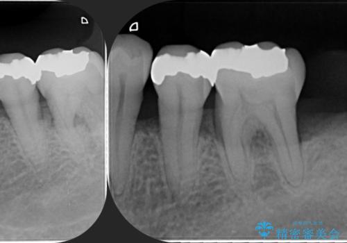[歯周病治療]  再生療法で歯を残す①の治療前