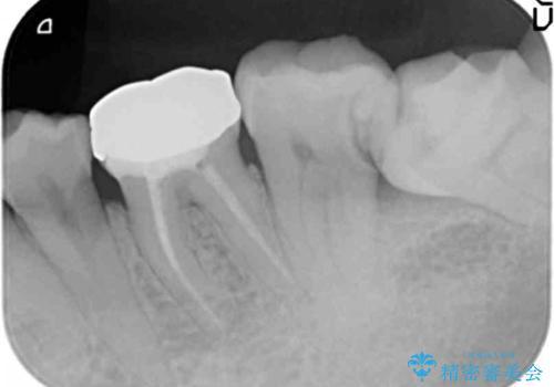 40代女性 親知らずを放置 手前の歯が虫歯にの治療前