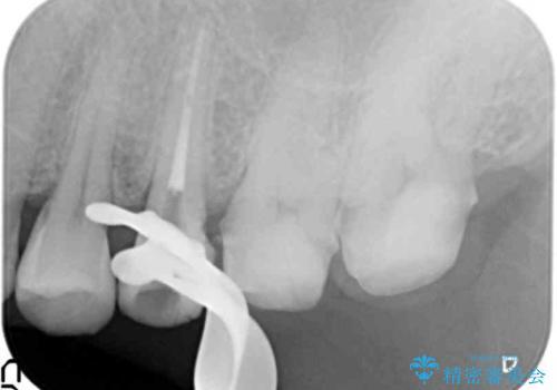 つめものが取れて放置 奥歯3本の治療の治療中