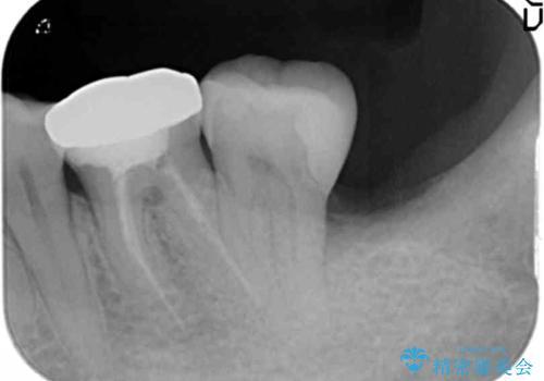 40代女性 親知らずを放置 手前の歯が虫歯にの治療後