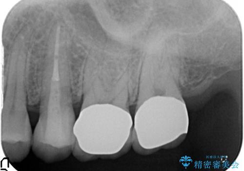 つめものが取れて放置 奥歯3本の治療の治療後