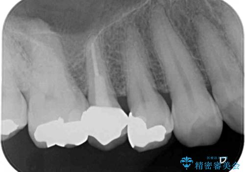 セラミッククラウンによる奥歯の虫歯治療 の治療後