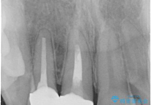 根管治療で変色した歯をセラミックで白くの治療後