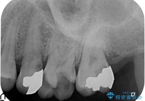 つめものが取れて放置 奥歯3本の治療の治療前