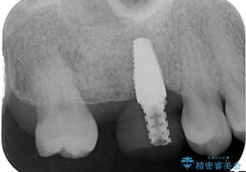 インプラントと部分矯正による奥歯のかみ合わせの改善の治療前