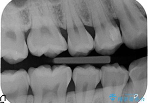 上の奥歯 深い樹脂のつめもののやりかえの治療前