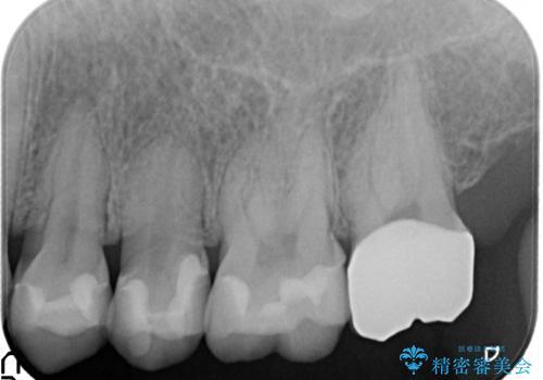 金属→セラミックへのやり直し 予想以上に深い虫歯とその処置の治療後