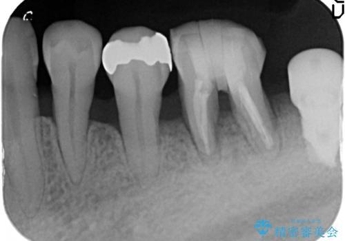[歯周病治療]  再生療法で歯を残す②の治療前
