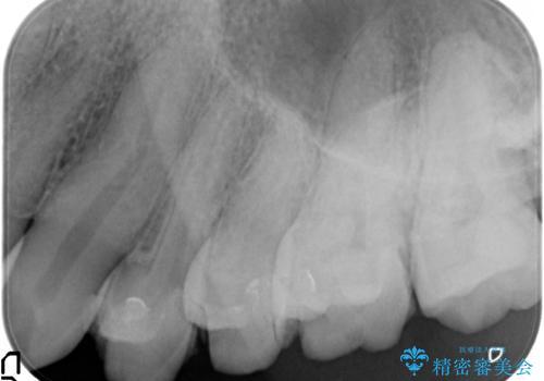 治療途中で放置 上の奥歯3本をセラミックインレーに 2年後も良好な状態ですの治療前
