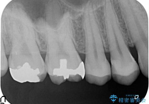 セラミックインレー 銀歯を白くの治療後