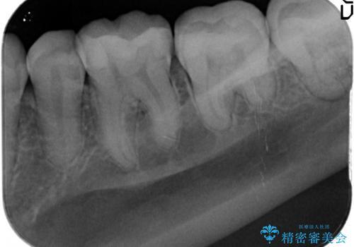 顕微鏡を用いた神経を残す虫歯治療の治療前