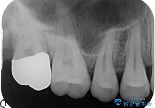 20代男性 上の奥歯のレジン修復下の虫歯 の治療後