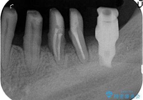 [歯周病治療]  再生療法で歯を残す②の治療中