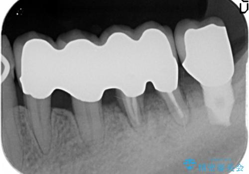 [歯周病治療]  再生療法で歯を残す②の治療後