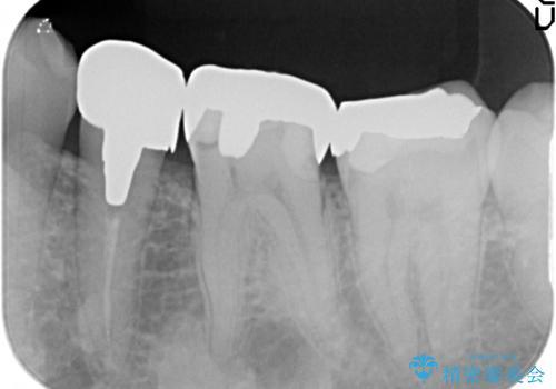 ゴールド(PGA)クラウン 虫歯治療の治療前