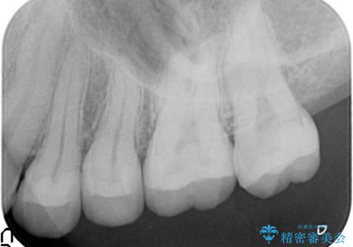 治療途中で放置 上の奥歯3本をセラミックインレーに 2年後も良好な状態ですの治療後