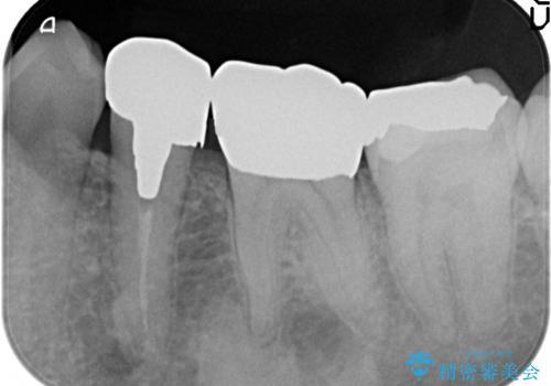 ゴールド(PGA)クラウン 虫歯治療の治療後