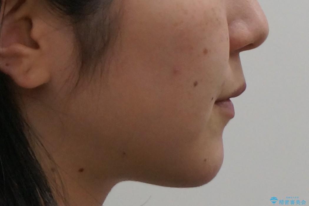 20代女性 前歯のがたがた 後ろに引っ込んでいる歯があるの治療後(顔貌)
