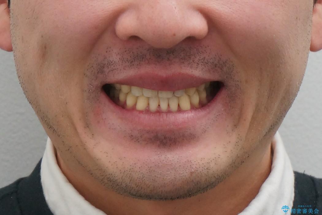受け口、八重歯 変則的な抜歯の治療後(顔貌)