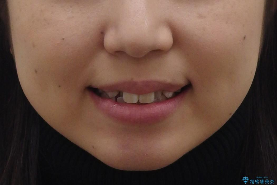 20代女性 前歯のがたがた 後ろに引っ込んでいる歯があるの治療前(顔貌)