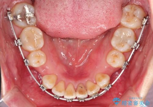 出っ歯を治したい メタル装置による抜歯矯正の治療中
