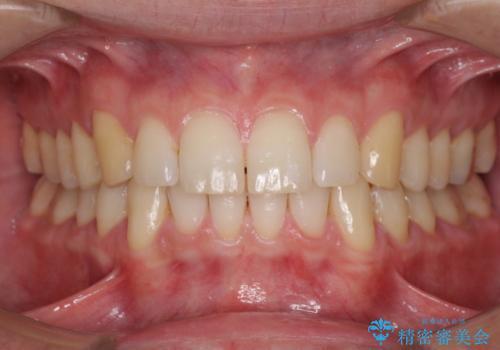 インビザラインによる矯正治療と銀歯の審美治療の症例 治療後