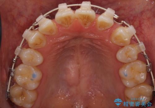 下の前歯が一本少ない ワイヤーによる出っ歯の矯正治療の治療中