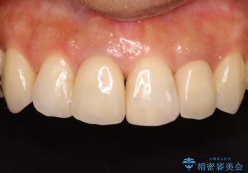 前歯の被せものの治療後