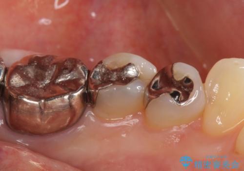 セラミックインレー しみる銀歯の治療の治療前