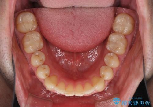 インビザラインによる矯正治療と銀歯の審美治療の治療後