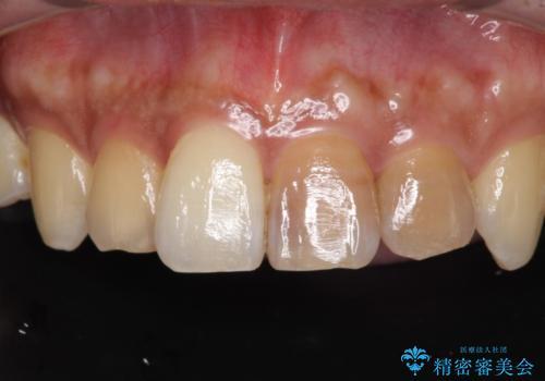 著しい変色歯をオールセラミックにの症例 治療前