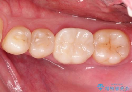 継ぎはぎ状態の奥歯 劣化した材料を取り除きクラウンへの治療後