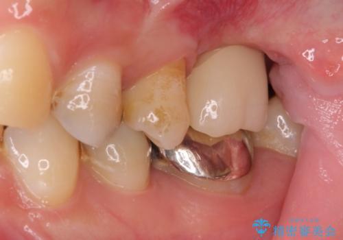 上顎臼歯部におけるインプラント治療の治療後