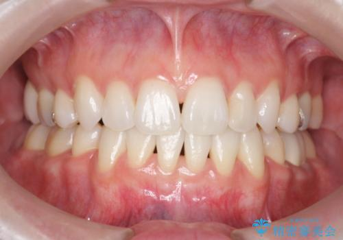 前歯を下げたい 矯正治療+つめもののやりかえの症例 治療後