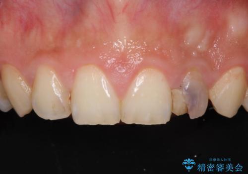変色した前歯をオールセラミッククラウンにの症例 治療前