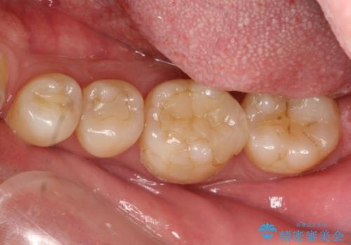 継ぎはぎ状態の奥歯 劣化した材料を取り除きクラウンへの治療前