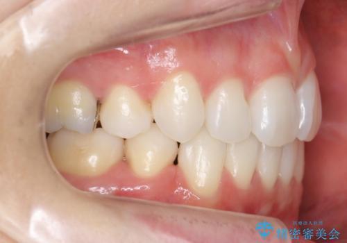 前歯を下げたい 矯正治療+つめもののやりかえの治療後
