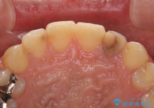 変色した前歯をオールセラミッククラウンにの治療前