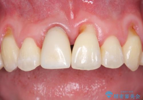 変色した前歯をセラミックにの治療中