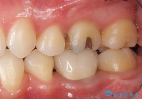 銀のつめものをセラミックで白く の治療後