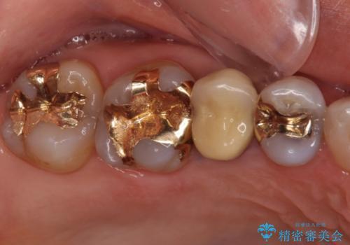 セラミッククラウンによる奥歯の虫歯治療 の治療前