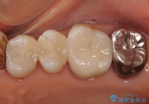 60代女性 銀歯の下が虫歯 隣も虫歯の治療後