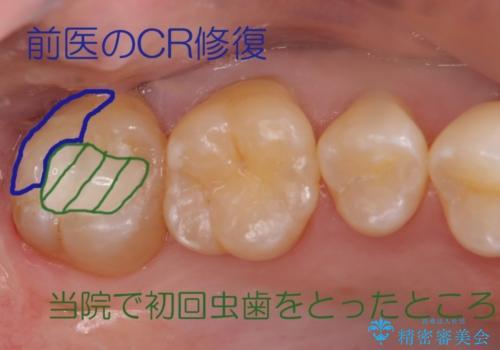 20代男性 上の奥歯のレジン修復下の虫歯 の治療中