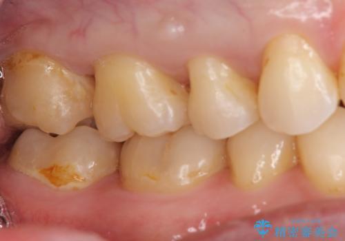 20代男性 上の奥歯のレジン修復下の虫歯 の治療前