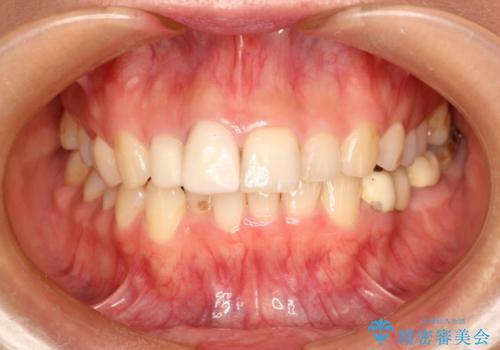 根管治療で変色した歯をセラミックで白くの治療中