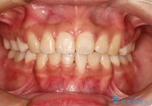 前歯のガタガタ・八重歯治したい ワイヤーによる矯正の症例 治療後