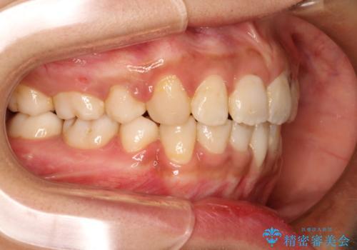 前歯のガタガタ・八重歯治したい ワイヤーによる矯正の治療後